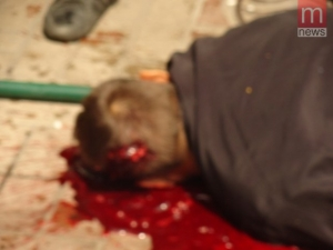 Кърваво меле преди местните избори! ПРЕБИХА ДПС АКТИВИСТ И БРАТ МУ!